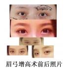 眉弓增高术前后对比照片