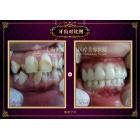 氟斑牙、牙齿畸形 美容冠修复