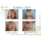 巨乳缩小典型病例照片