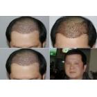 黄先生采用了fue+mprp的4500单位的毛发移植效果