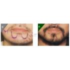 胡须种植的案例