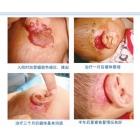 耳后混合状血管瘤案例
