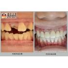 牙齿缺损美容冠修复实例