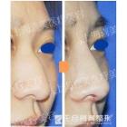 驼峰鼻鹰钩鼻整形修复案例