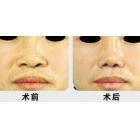 鼻头整形案例分享