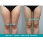 大腿吸脂减肥 体型雕塑的艺术