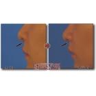 唇情物语(第30话):鼻小柱根部提升