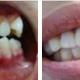 京通医院牙齿矫正案例分享