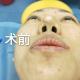 失败的鼻子也能美丽如初