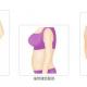 自体脂肪填充胸部会不会下垂呢❓❓❓