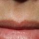 心路历程    本来皮肤就不是很好,又长了这么多的胡子,恶心死了!   在网上跟我们这的一个整形医院的医生谈...