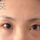 天生眼袋妹:我今年27了,打从我记事起就有眼袋,长大后越来越明显,看着很别扭,困扰了我这么多年,我终于...